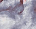 arten leukaemie leukaemie anzeichen