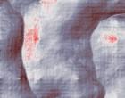 brustkrebs therapie