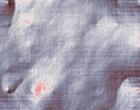 haarzell leukaemie
