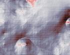 krankheitsverlauf leukaemie leukaemie aml durch viren 2006