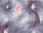 haarzell leukaemie leukaemie kind gruppe