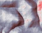 leukaemie aml